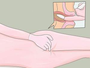 Thuốc đặt hậu môn chữa bệnh trĩ