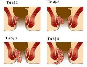 Bệnh trĩ cấp độ 1 có thể dễ dàng chữa khỏi