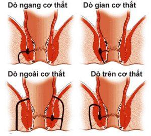 Bệnh rò hậu môn xuyên cơ thắt