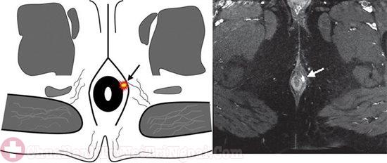 Chụp X-quang lỗ rò hậu môn nhằm chẩn đoán chính xác bệnh